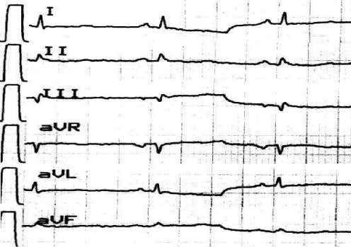 QRSQRS complexescomplexes andand PP andand TT waveswaves EchoEcho -- cardiaccardiac enlargement,enlargement,