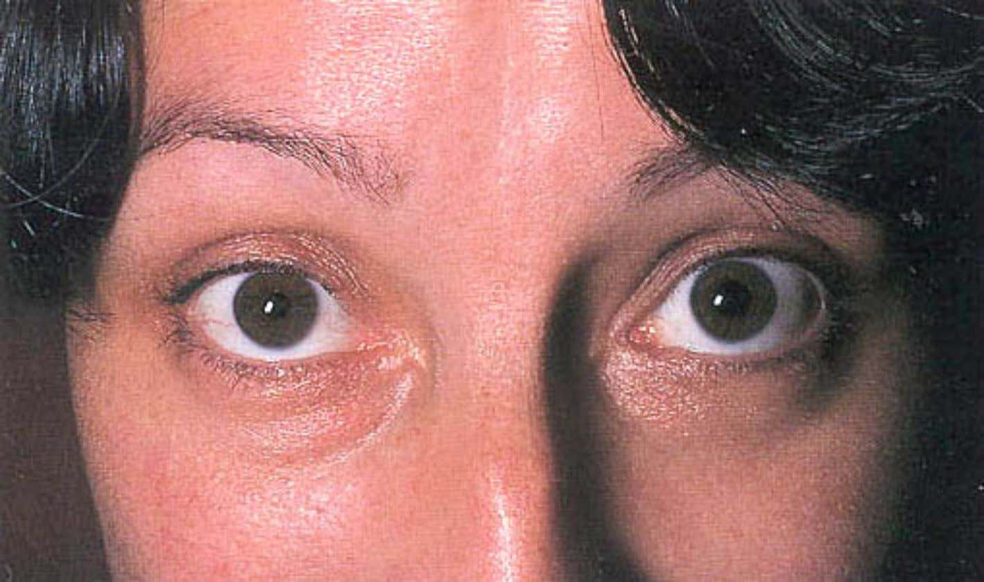 Graves Graves Ophthalmopathy Ophthalmopathy