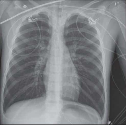 baqais et al Figure 1) Chest x-ray revealing bilateral hyperinflation and sand bronchogram DISCUSSION Aspiration is
