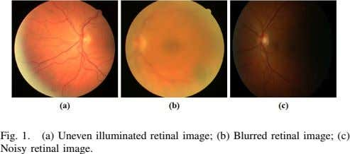 Fig. 1. (a) Uneven illuminated retinal image; (b) Blurred retinal image; (c) Noisy retinal image.