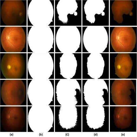 TABLE II S EGMENTATION R ESULTS II Type of Accurately Accurately Poorly Poorly Segmentation Processed Processed