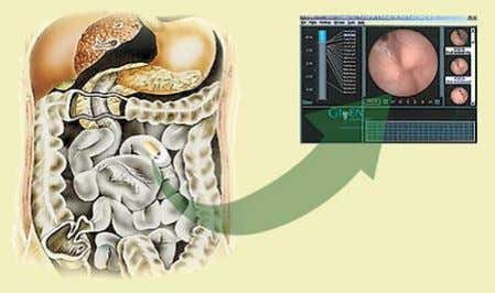 tract that cannot be seen with other types of endoscopy • capsule usually passes through feces