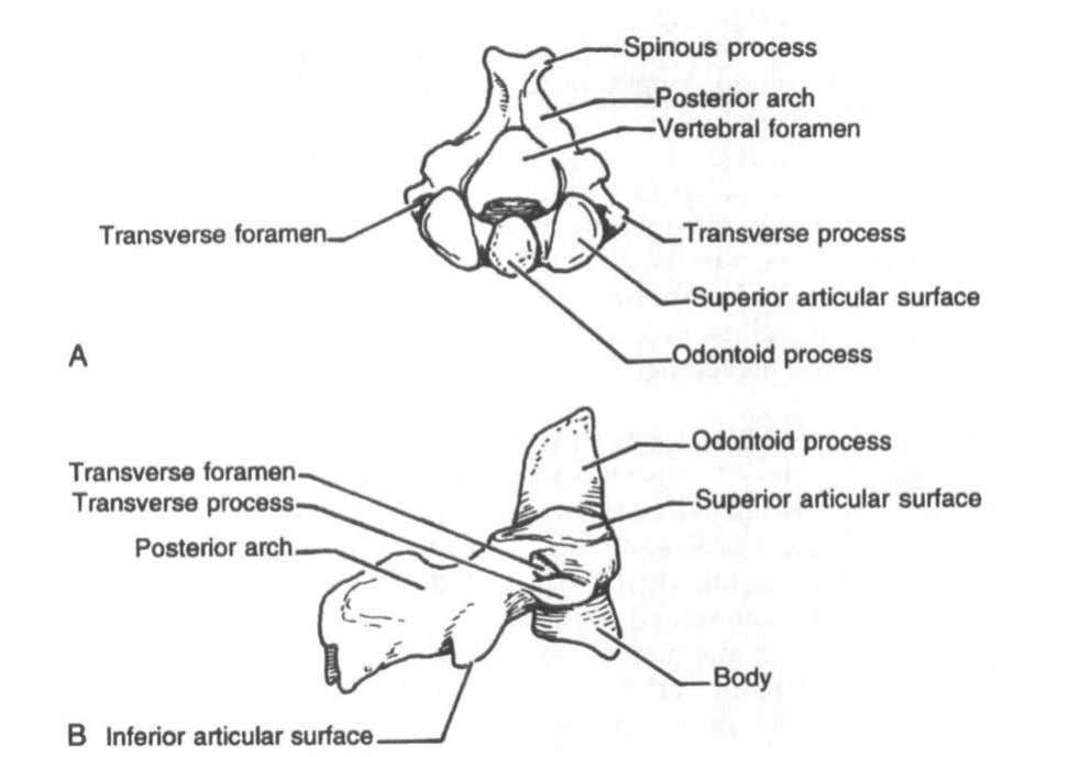 Anatomy oftheCervical Spine 9 Figure 3. Second cervical vertebra (axis): A, cranial view; B, lateral view.