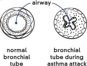 airway normal bronchial bronchial tube during tube asthma attack
