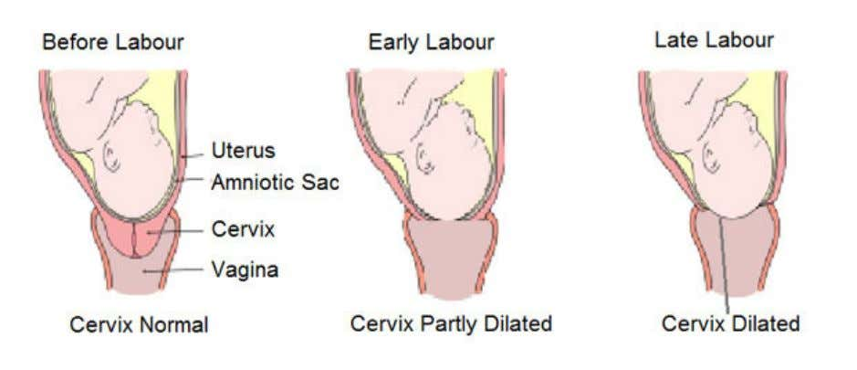 born so that the placenta is removed from the uterus too. Important Labour is triggered by