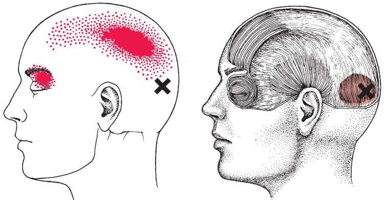 ing blindness. In both of these cases, there is persistent • FIGURE 5-10 Trigger points and