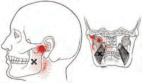from Medi Clip, Lippincott Williams & Wilkins.) • FIGURE 5-17 Trigger points and referral zones for