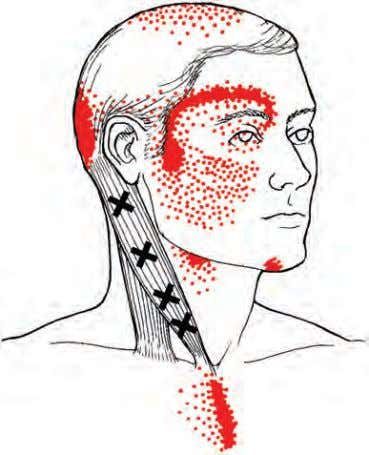 bances such as blurred vision or a dimming sensation. There • FIGURE 5-5 Trigger points and