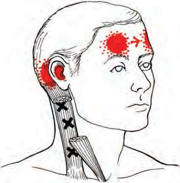 • FIGURE 5-6 Trigger points and referral zones for the clavicular head of the sternocleidomastoid.