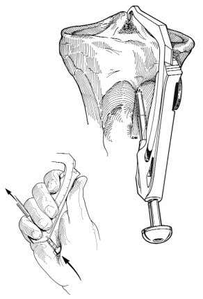ENDOBUTTON™ CL BTB Fixation System Stuart Fromm, M.D. Figure 3: Positioning of the tibial aiming device