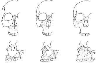 (Transverse fracture) LE FORT III (Craniofacial disjunction) LE FORT II (Pyramidal fracture) Figure 20. Le Fort