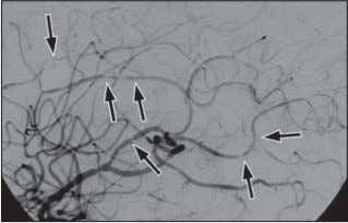 angiography. E. Transcranial Doppler sonography. A b c D Fig. 1— 32-year-old man with headache and