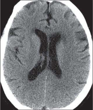 Nontraumatic Emergent Neuroradiology A D b E Fig. 5— 38-year-old woman with severe headache, nausea, and