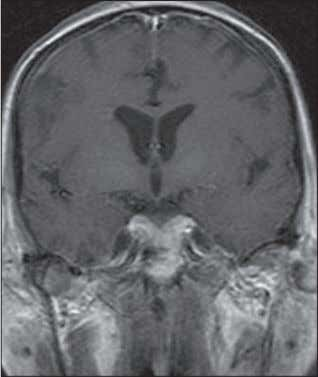 T1-weighted image ( G ) shows no area of abnormal en- hancement on any lesions. AJR:191,
