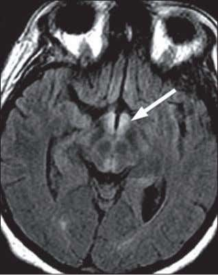 in medial thalami. Nontraumatic Emergent Neuroradiology A c b D Solution to Question 17 Brain MRI
