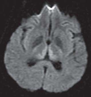 medial thalami. Nontraumatic Emergent Neuroradiology A c b D Solution to Question 17 Brain MRI shows