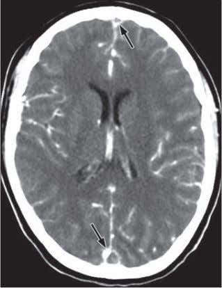 E. Brain MRI with time-of-flight MR venography. A b Fig. 2— 19-year-old woman who presented to