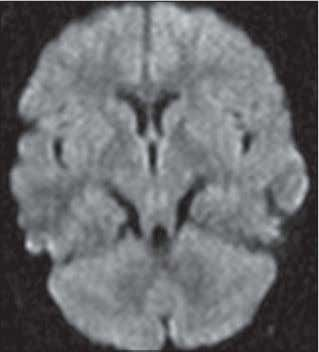 infarction and parenchymal hemor- rhage ( arrow, F ) is present in left frontal lobe. AJR:191,