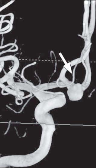 perforating arteries ( arrow ), which are not eas- ily visualized on CT angiography. b D