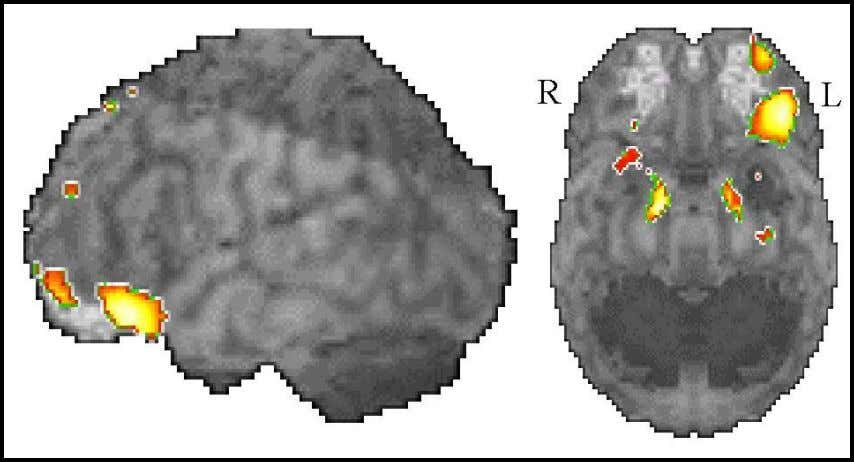 48 Fig. 4.4: Functional magnetic resonance imaging: activation during chemical stimulation (modified according to DH Zald