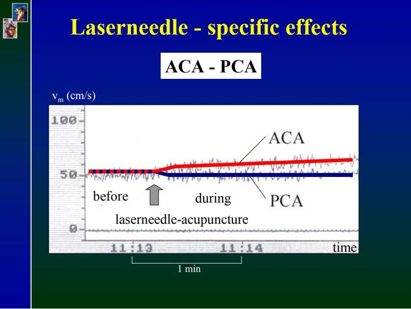 Laserneedle - specific effects ACA - PCA v m (cm/s) before during laserneedle-acupuncture time 1