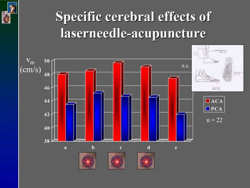 SpecificSpecific cerebralcerebral effectseffects ofof laserneedlelaserneedle--acupunctureacupuncture v 50 m n.s.
