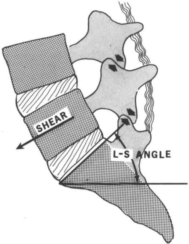 FICURE 16. Shear stress on facets. Forward and downward shear of the fifth lumbar vertebra