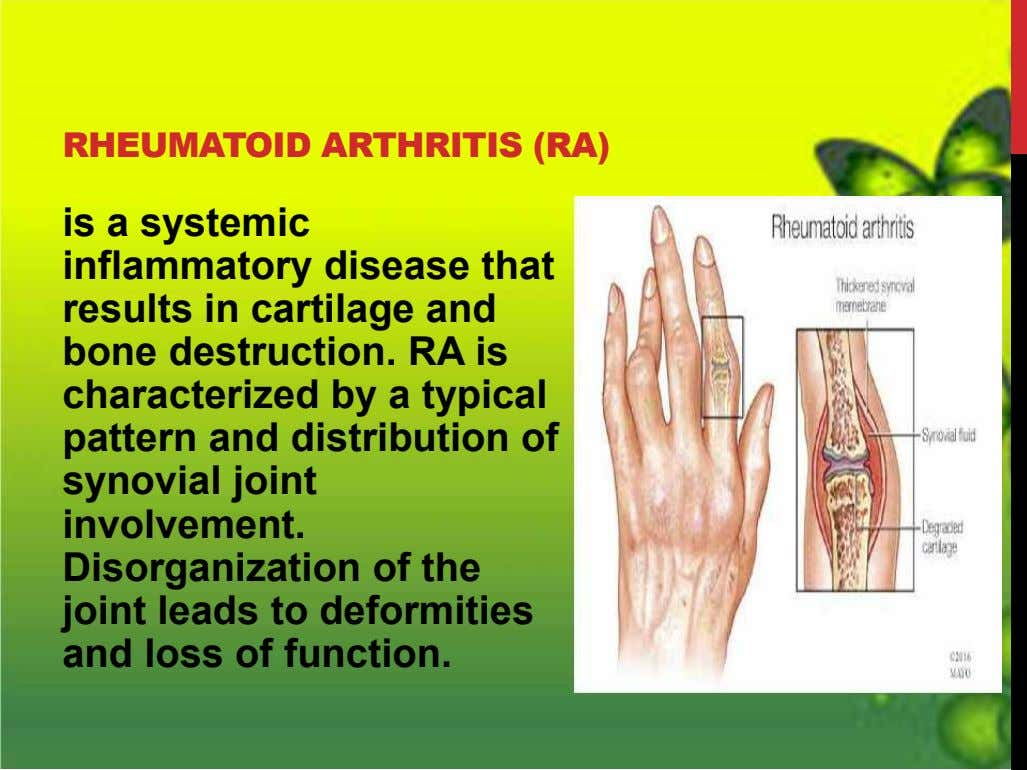 RHEUMATOID ARTHRITIS (RA) is a systemic inflammatory disease that results in cartilage and bone destruction.
