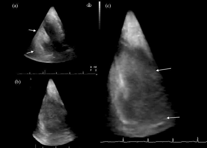 of this case were 4758 IU/L and 414 IU/L, respectively. Fig. 4. A case with posterior