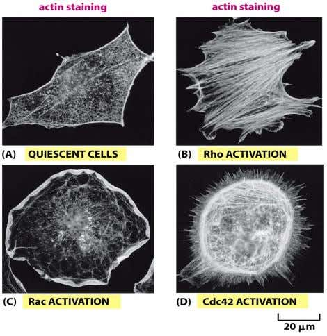 Figure 16-97 Molecular Biology of the Cell (© Garland Science 2008)