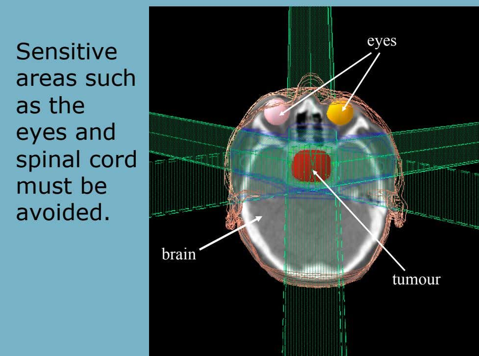 eyes Sensitive areas such as the eyes and spinal cord must be avoided. brain tumour
