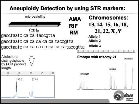 AneuploidyAneuploidy DetectionDetection byby usingusing STRSTR markers:markers: microsatellite Chromosomes:Chromosomes: