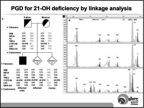 PGDPGD forfor 21-21-OHOH deficiencydeficiency byby linkagelinkage analysisanalysis