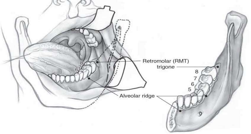 and a cross-section of the tongue and floor of mouth (21). Figure 7: Trans-oral view of