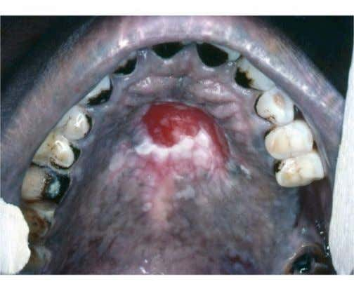 with a significant risk of malignant transformation (44). Figure 11: Palatal lesion associated with reverse smoking.
