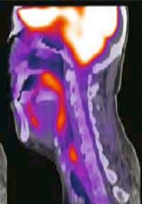 attach of pharyngitis or tonsillitis (Figure 23) (122). Figure 20: Midline sagittal view with