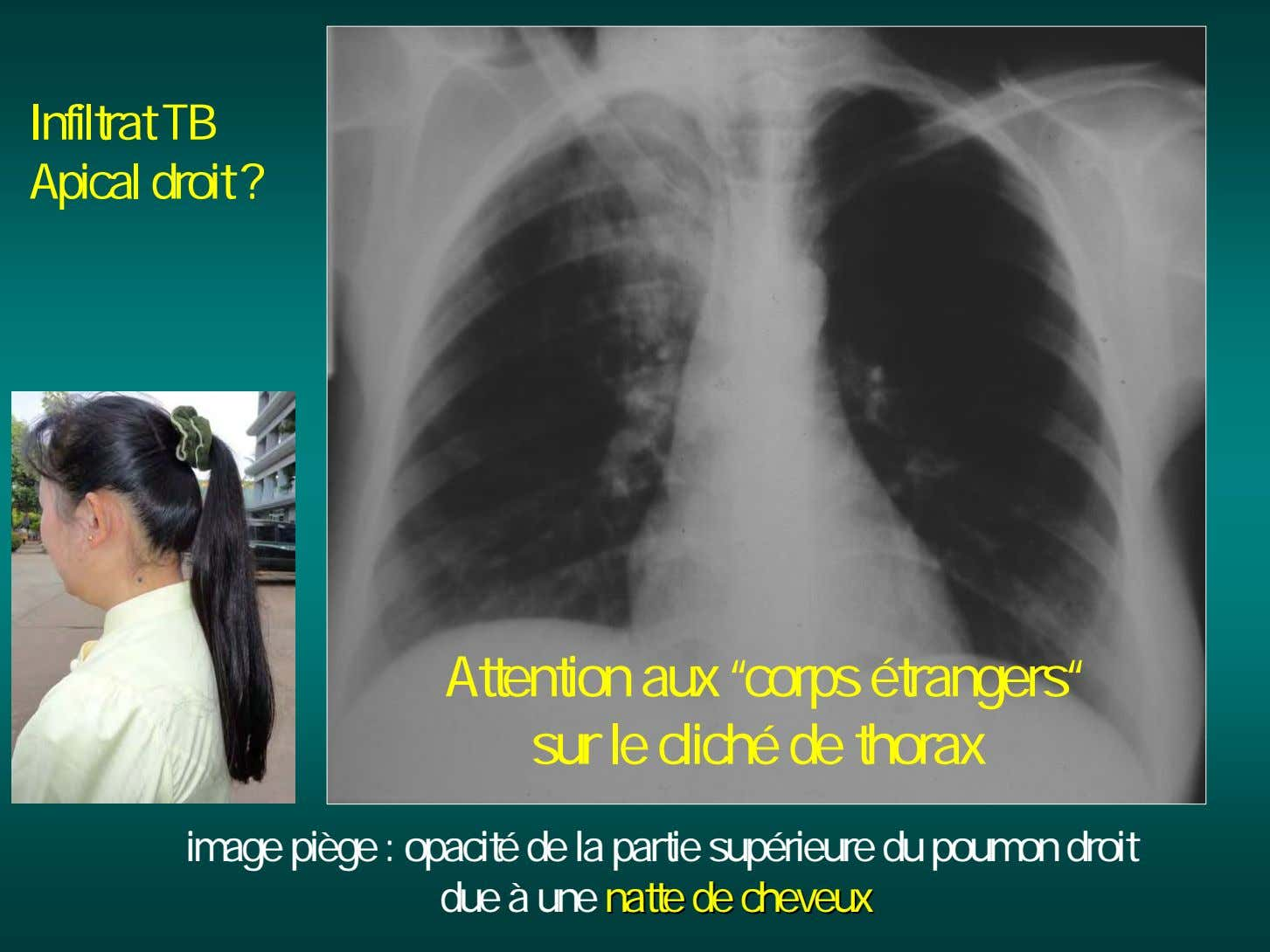 "Infiltrat TB Apical droit ? Attention aux ""corps étrangers"" sur le cliché de thorax image"