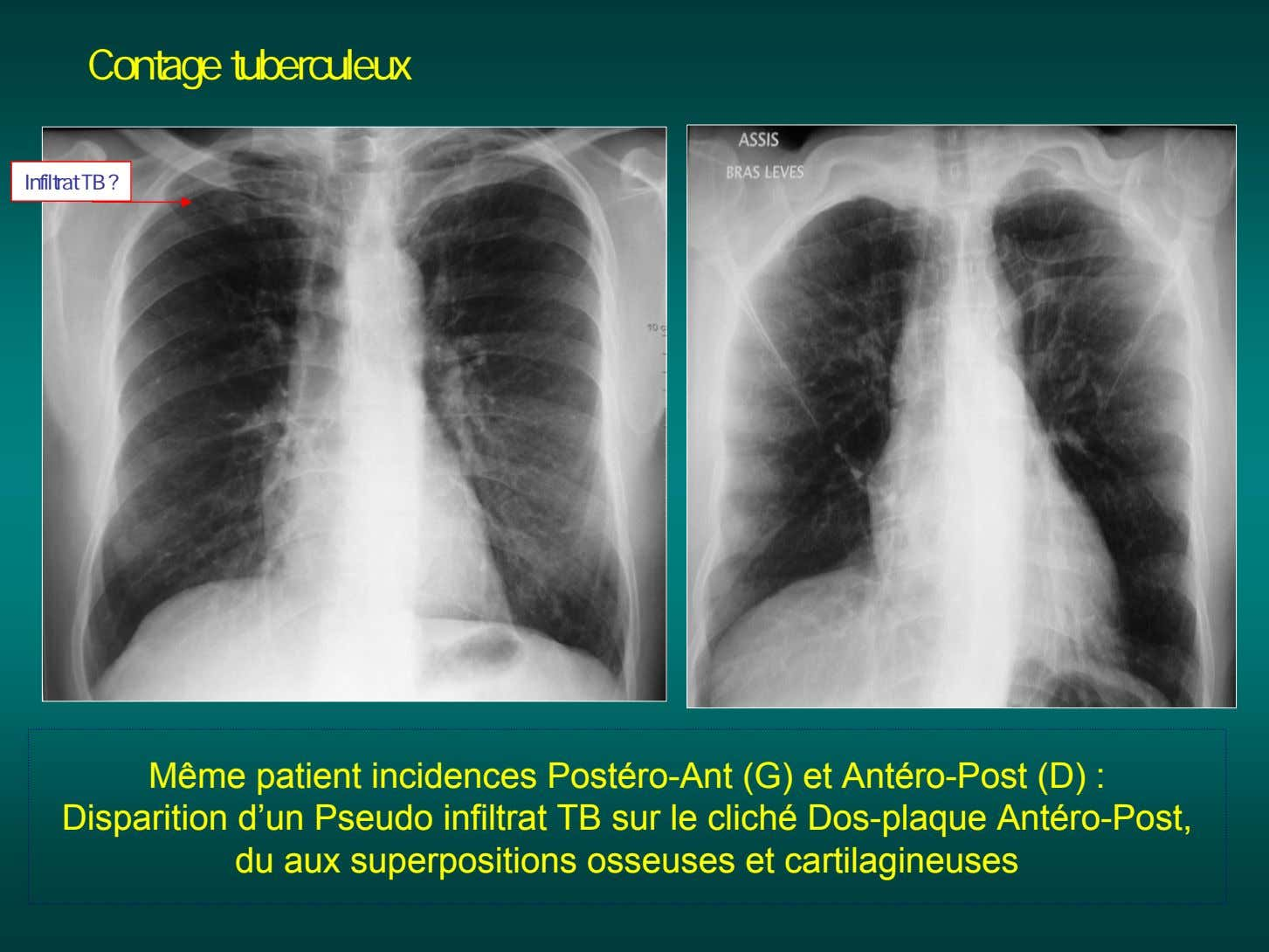 Contage tuberculeux Infiltrat TB ? Même patient incidences Postéro-Ant (G) et Antéro-Post (D) : Disparition