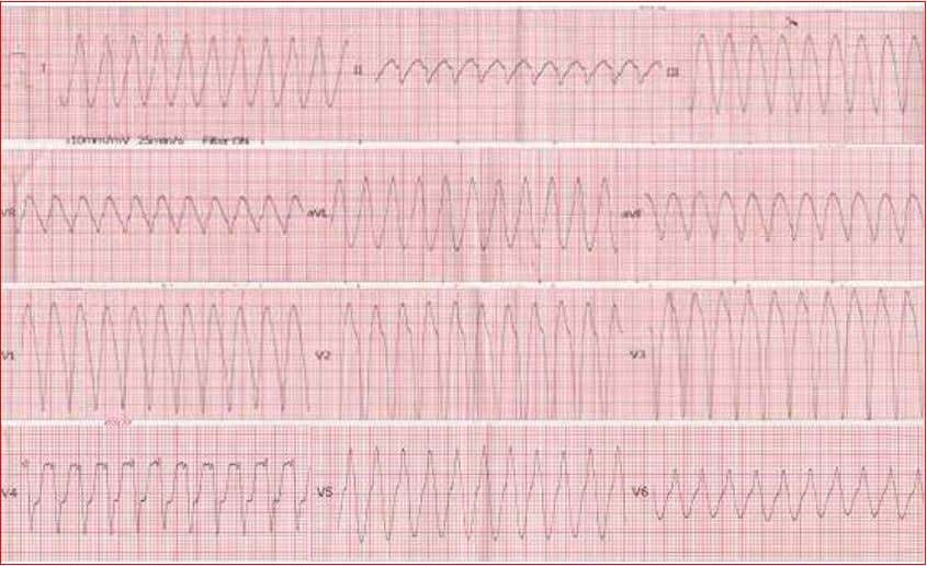 tachycardia (Figure-3) and SpO 2 was not accessible. Figure-3: Preexcitation in the form of Ventricular