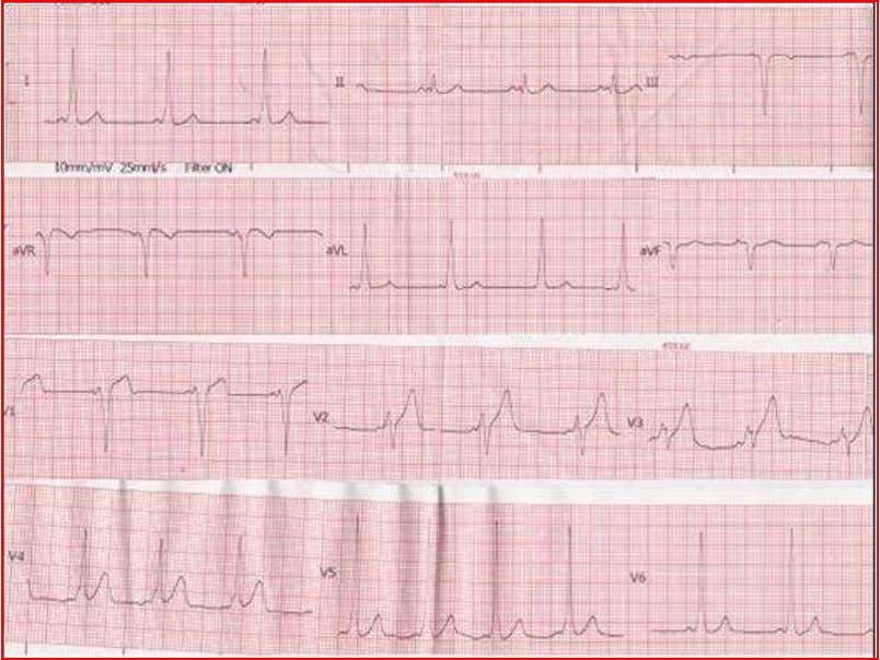 ventricular tachycardia (during atrial fibrillation) 7 . Figure-4: WPW syndrome Figure-5: Delta wave in ECG Carotid