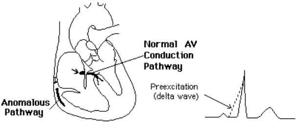 (during atrial fibrillation) 7 . Figure-4: WPW syndrome Figure-5: Delta wave in ECG Carotid sinus pressure