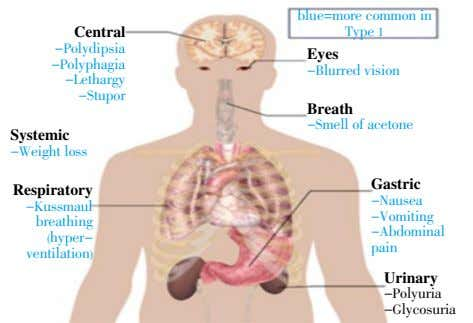 Central blue=more common in Type 1 -Polydipsia Eyes -Polyphagia -Blurred vision -Lethargy -Stupor Breath -Smell