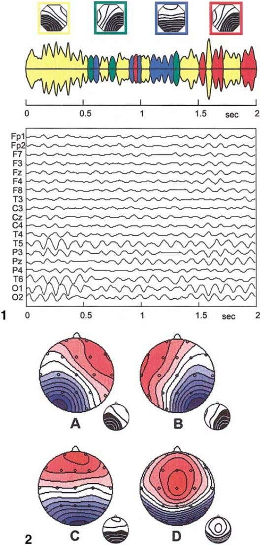 44 KOENIG ET AL. FIG. 1. The tracings show a sample 2-s eyes closed resting EEG