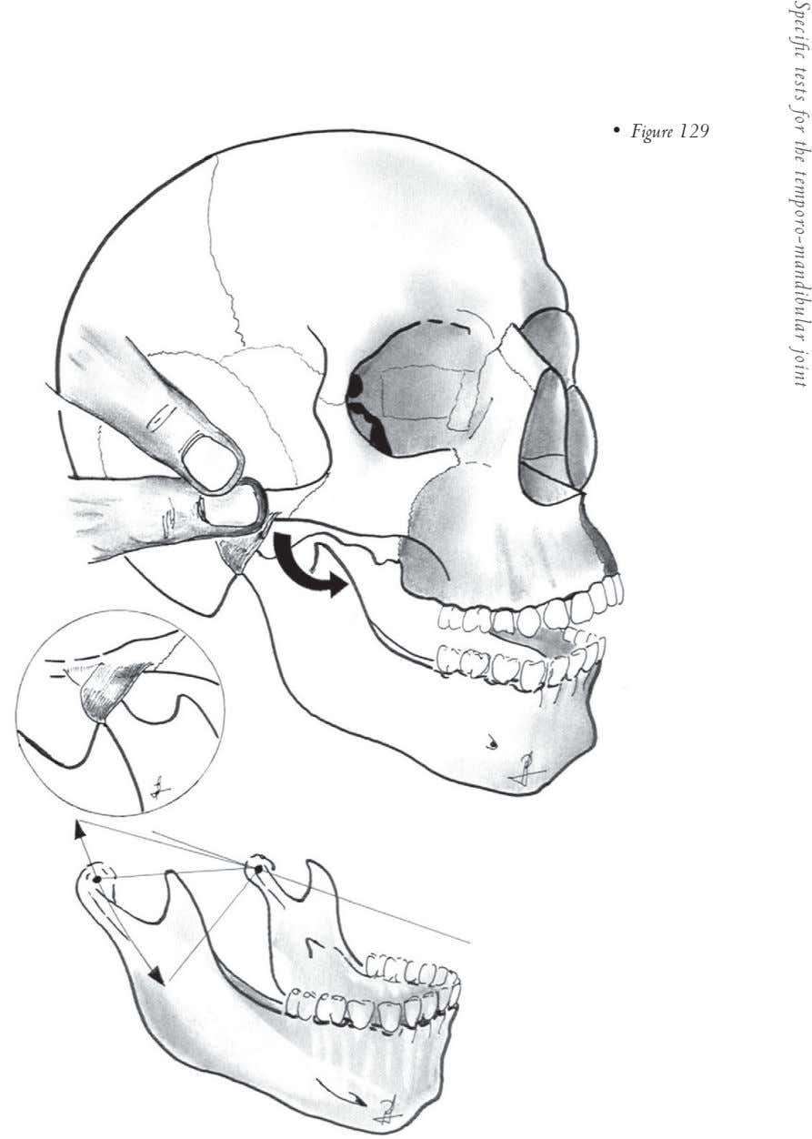 • Figure 129 Specific tests for the temporo-mandibular joint