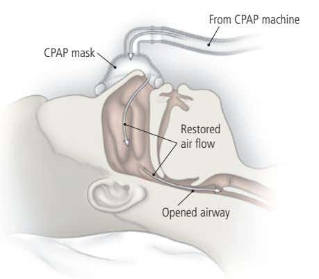 From CPAP machine CPAP mask Restored air flow Opened airway
