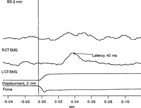 FIG. 6. Reflex latencies for mechanical stimulation. sionally some slippage of the rod off-center. This