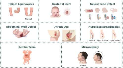 Talipes Equinovarus Orofacial Cleft Neural Tube Defect Normal Abdominal Wall Defect Atresia Ani