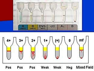  Prepared by centrifuging whole blood and extracting 200-260 ml. of the upper  liquid plasma.