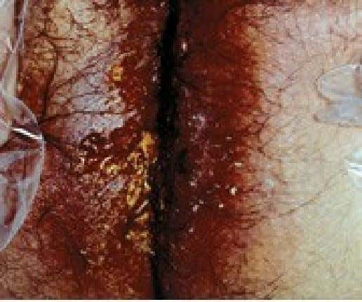 Cutaneous Amebiasis Cutaneous amebiasis: perineum Perineal/perianal ulcer in a patient with rectal amebiasis.