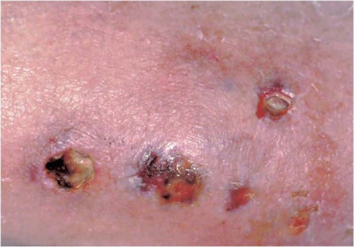 Cutaneous Acanthamebiasis Ulcerated lesions on the arm of a patient with disseminated Acanthamoeba infection. Skin nodules